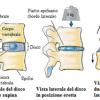 Schiacciamento vertebrale